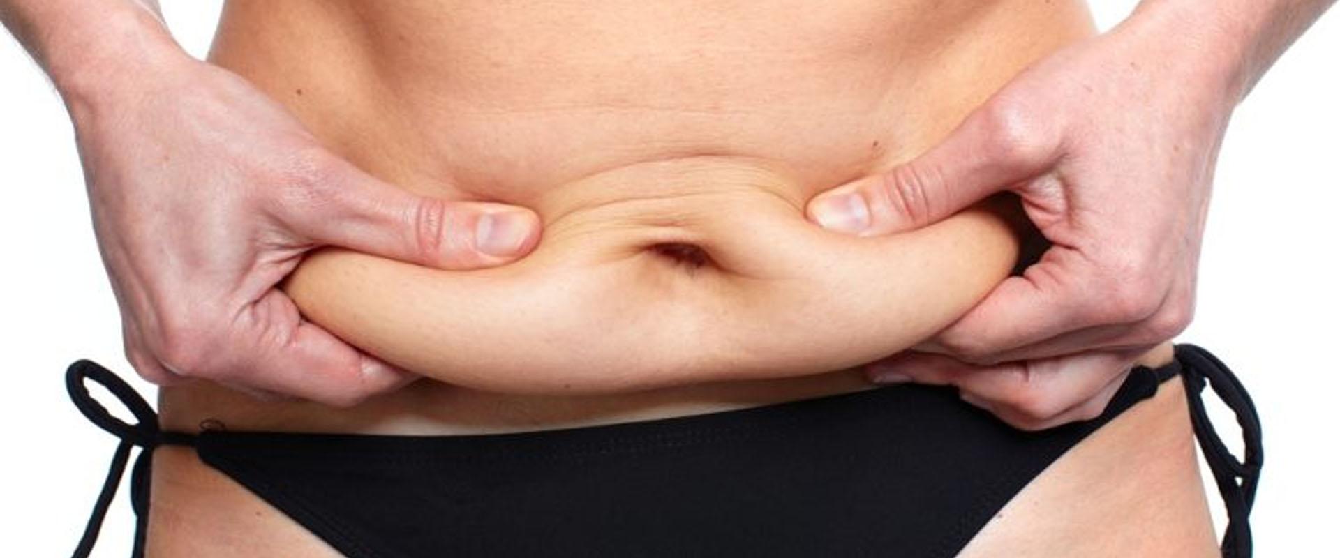 Tummy Tuck | Abdominoplasty