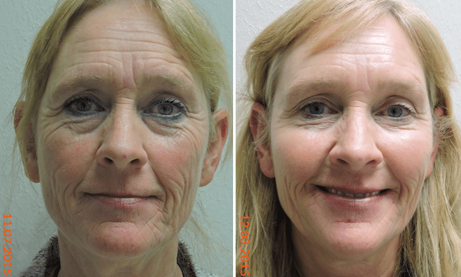 botox injection before and after