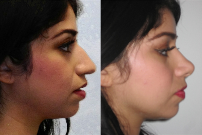 nose job cost in lahore